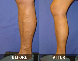 Varicose Veins Before and After 4