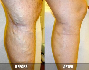 Varicose Veins Before and After 5