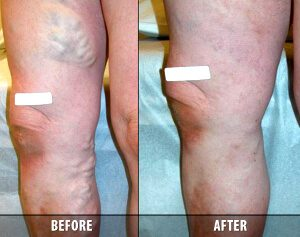 Varicose Veins Before and After 6
