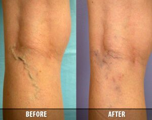 Varicose Veins Before and After 7