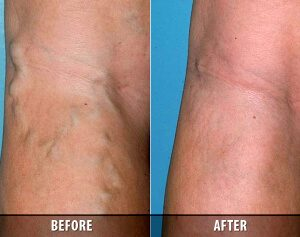 Varicose Veins Before and After 8