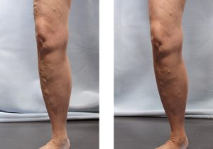 Varicose Veins Before and After 1