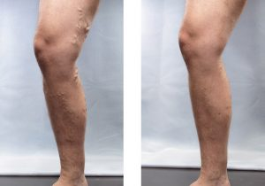 Varicose Veins Before and After 2