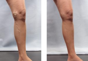 Varicose Veins Before and After 3