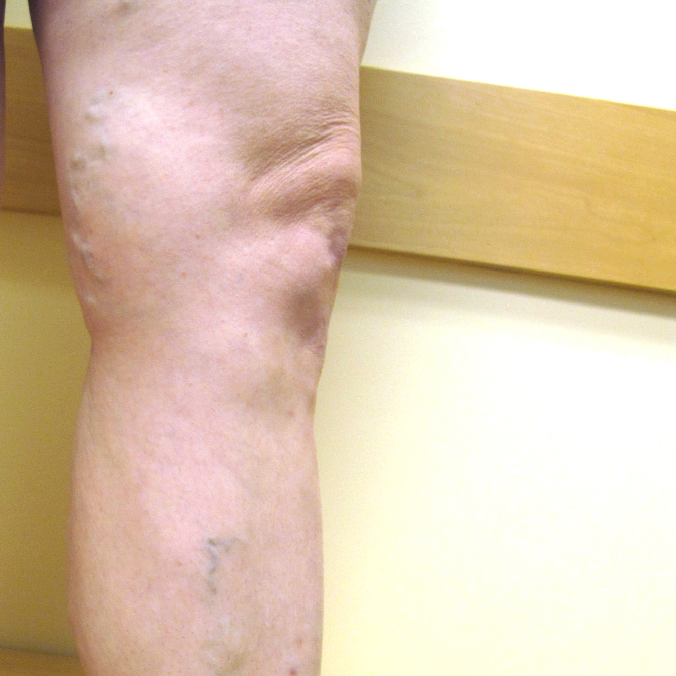 Varicose Veins After Treatment 1