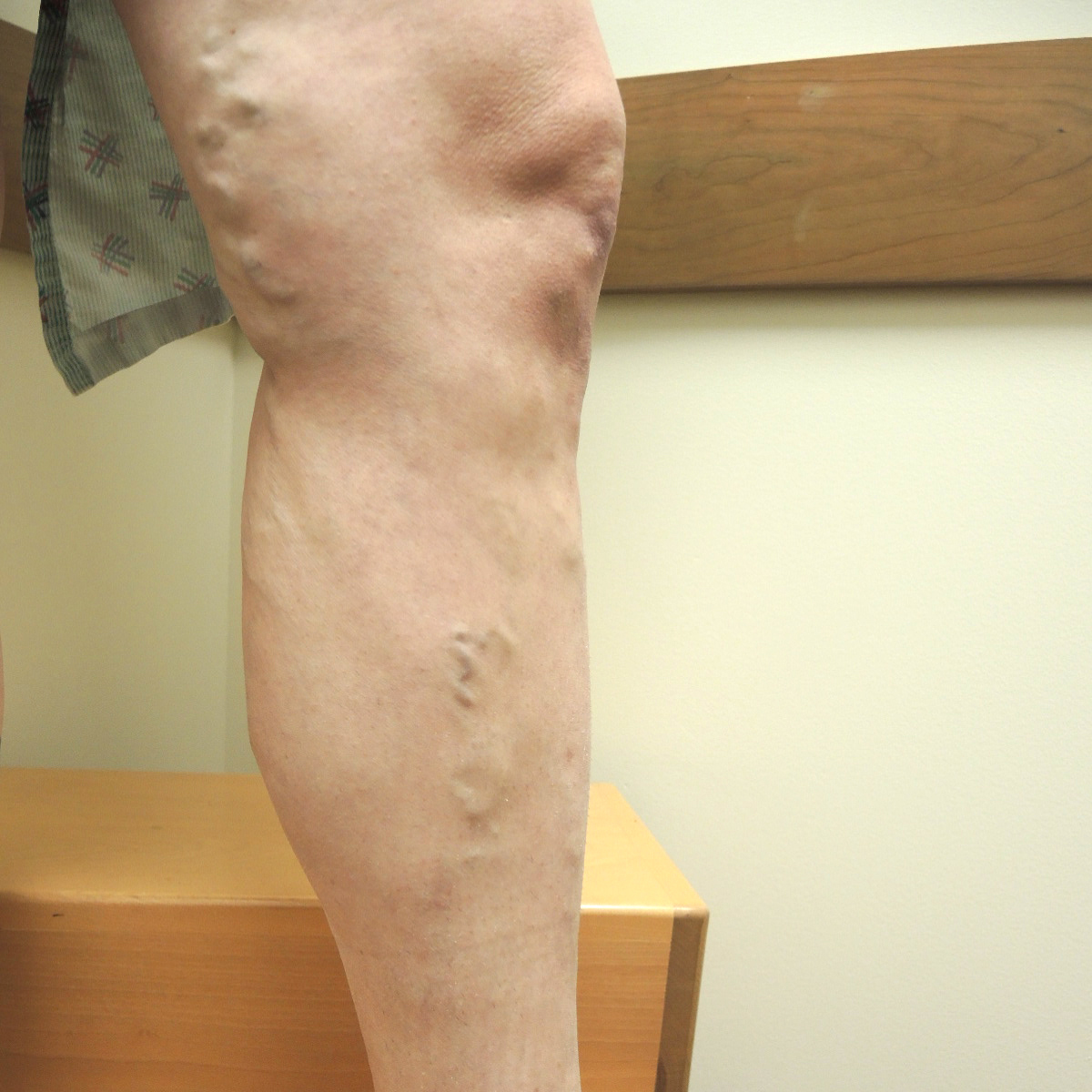 Varicose Veins Before Treatment 1