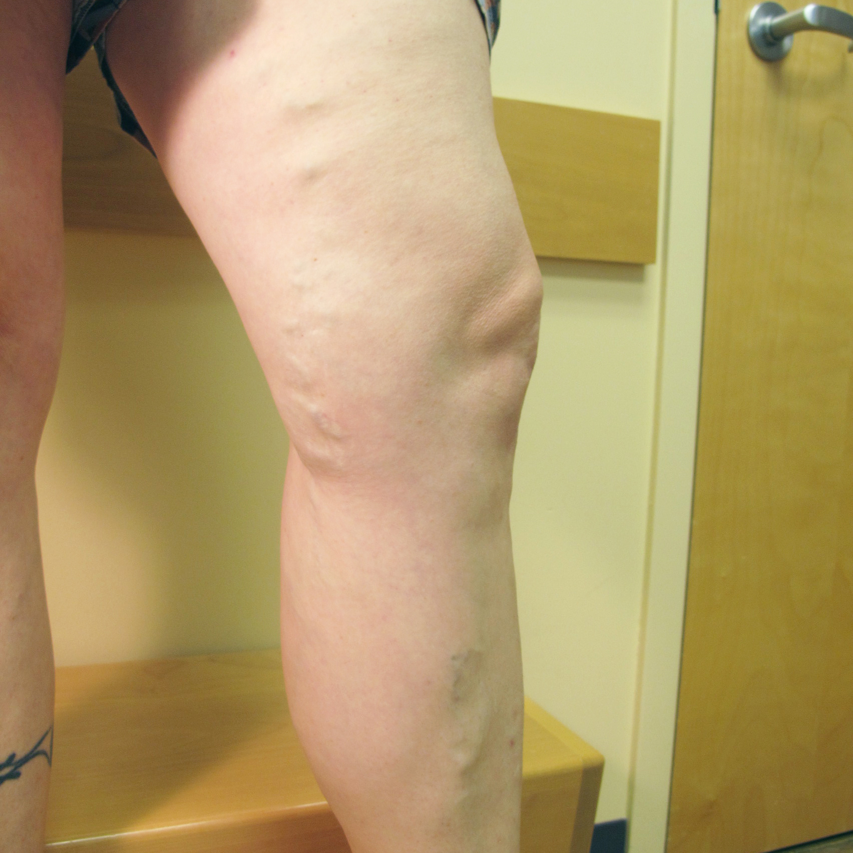 Varicose Veins After Treatment 2