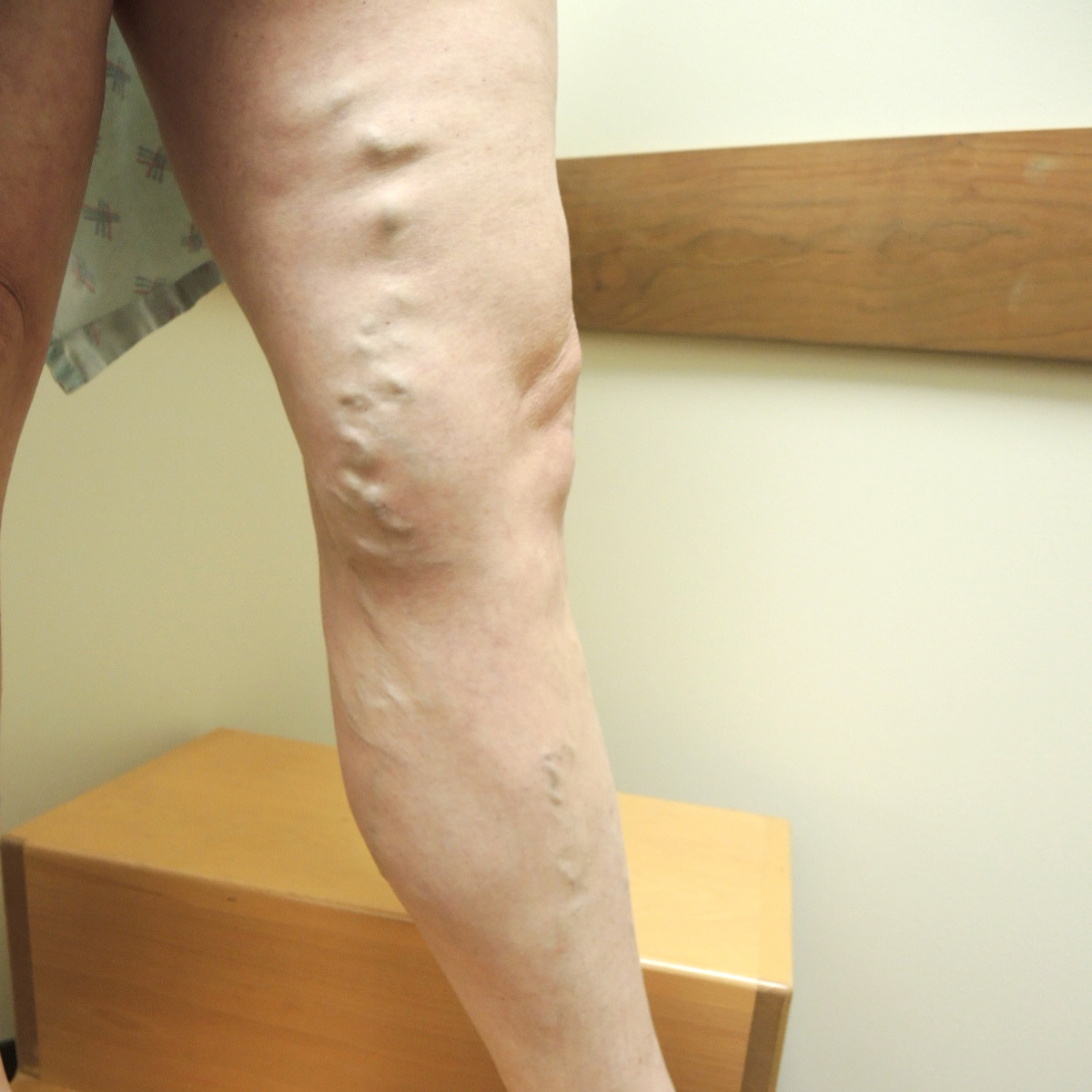Varicose Veins Before Treatment 2