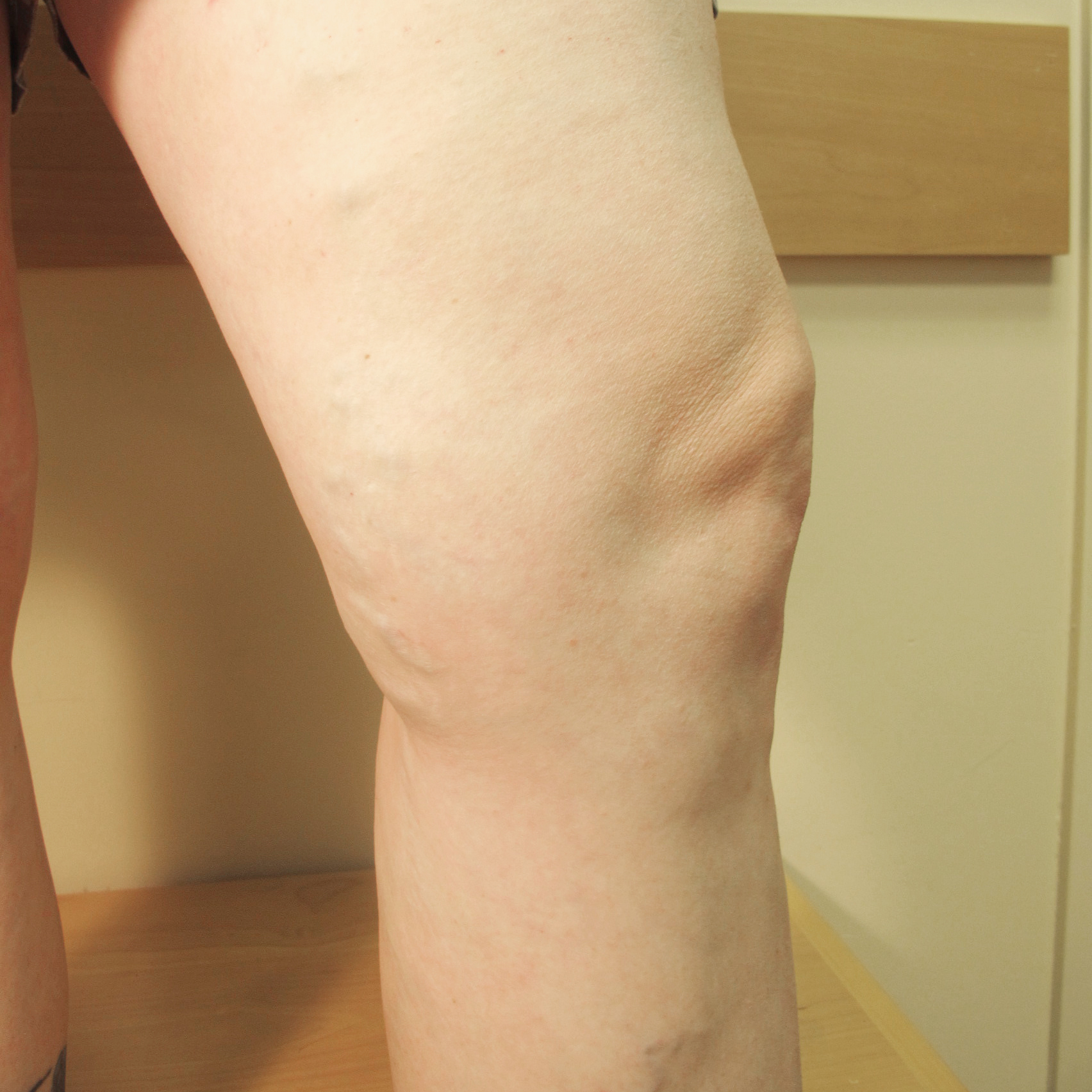 Varicose Veins After Treatment 3