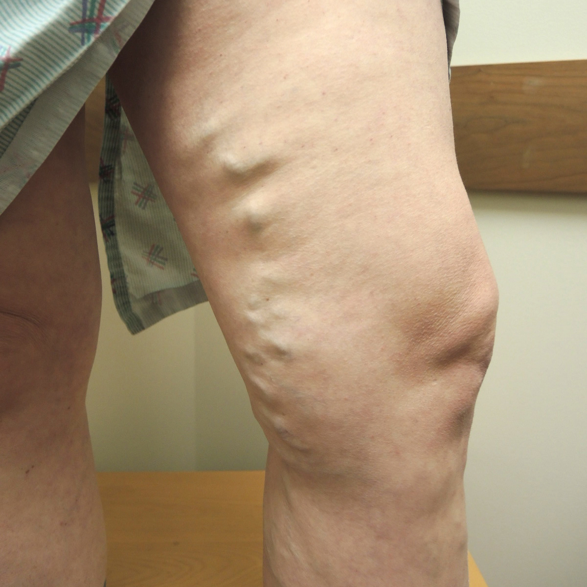Varicose Veins Before Treatment 3