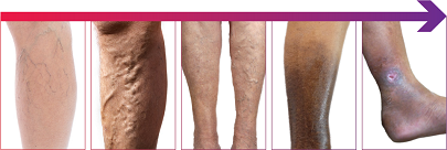 Varicose Vein Treatment Vein Doctor Roselle IL